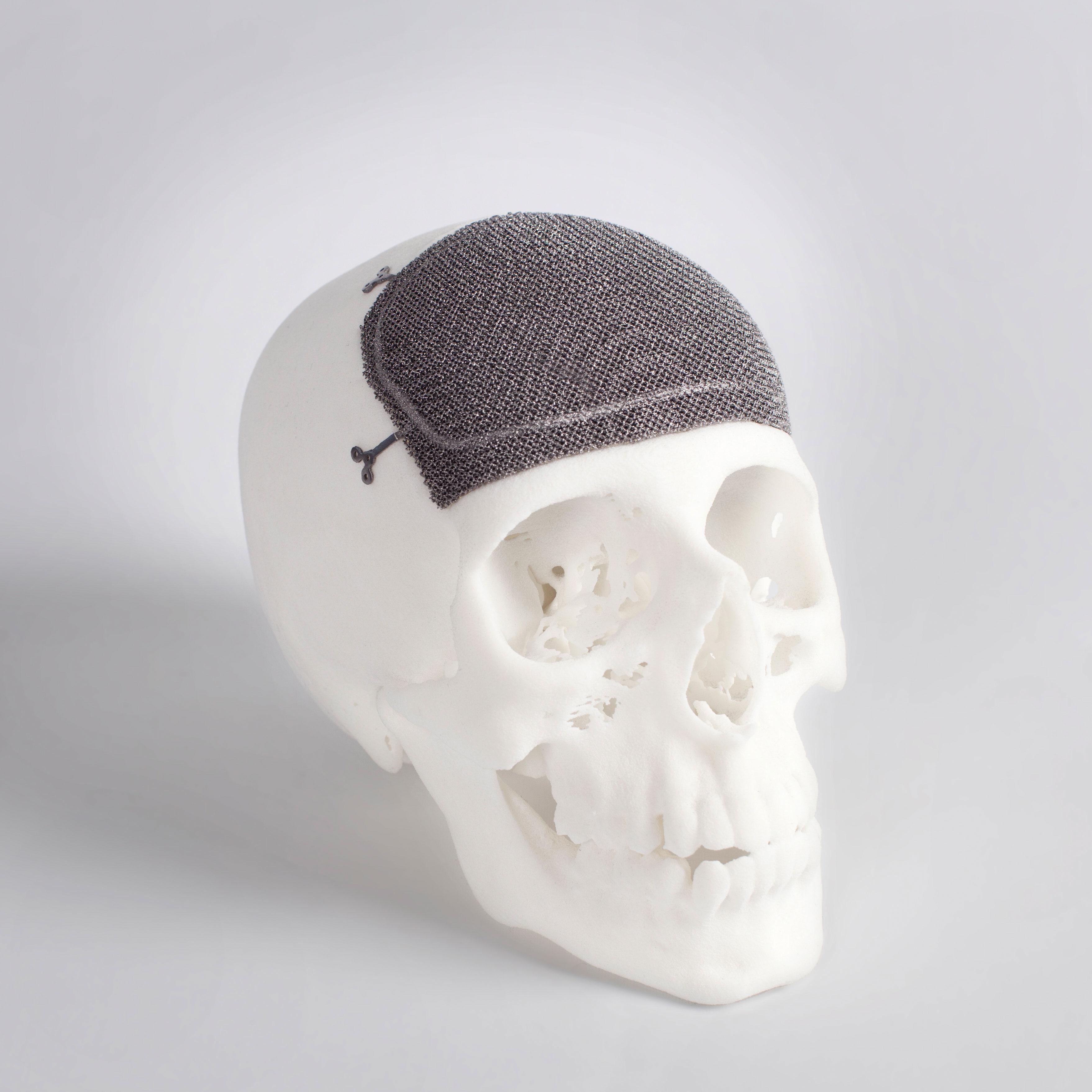 Черепно-лицевой имплантат, изготовленный с помощью технологии EBM